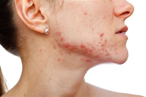 How to get rid of pimple behind ear - Wound Care Society
