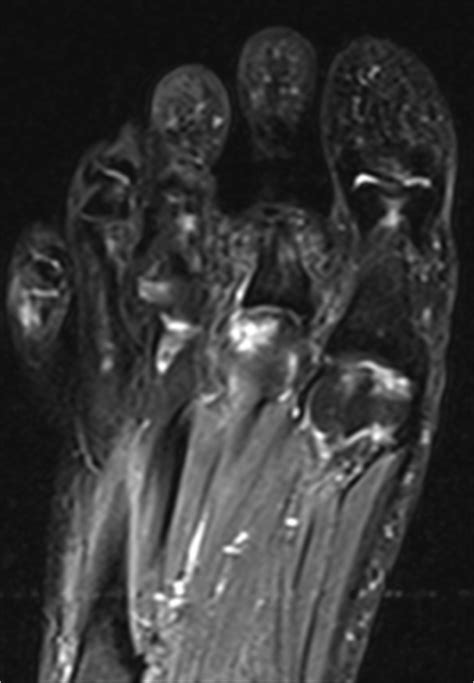 Osteochondral Defect Treatment of the Foot and Ankle