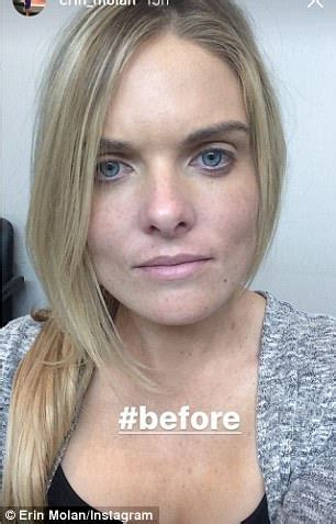 Erin Molan shows her face with and without makeup | Daily