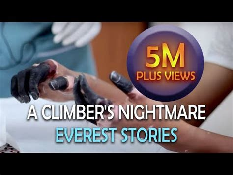 Frostbite - A Climber's Nightmare | Everest Stories - YouTube