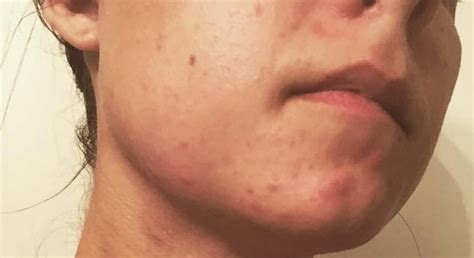 Dermatologists explain how to treat cystic acne